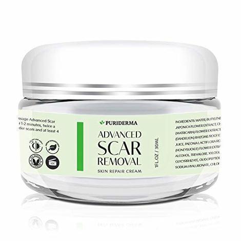5 Best Scar Removal Creams Aug 2020 Bestreviews